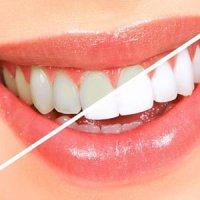 جرم گرفتن دندان به دلیل ۷ خطا