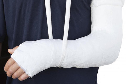 بهبود شکستگیهای استخوانی با گچ ایرانی